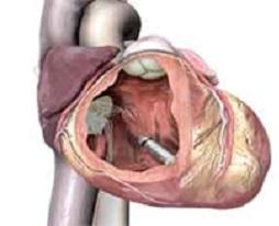 Cuore con pacemaker senza fili