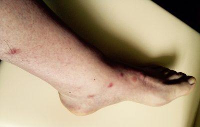 Esiti pruriginosi da punture di zanzare